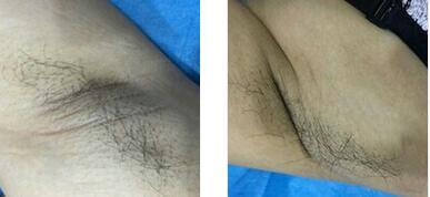 温州百佳东方整形孙华刚医生激光脱腋毛案例 不用再频繁手动刮毛