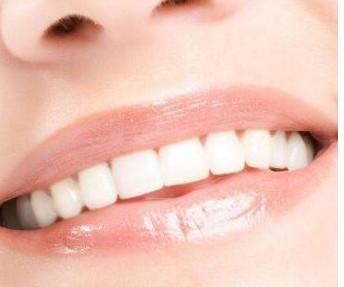 牙齿冷光美白可以维持多久?牙齿冷光美白有副作用吗