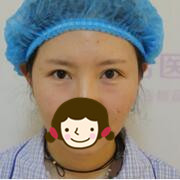 北京叶美人整形祛眼袋案例 气色都好了很多,很happy