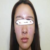 昆明博美整形自体填充苹果肌案例 术后两个月对比比较