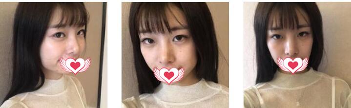 杭州艺星整形做玻尿酸垫下巴案例 术后60天真实素颜照一览