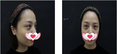 贵阳华美整形做玻尿酸丰苹果肌案例 术后30天真实素颜照一览