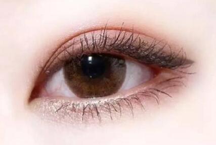 2020深圳阳光整形眼部手术价格出炉