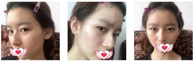 杭州美莱整形做鼻部综合术案例 术后30天术前术后对比图