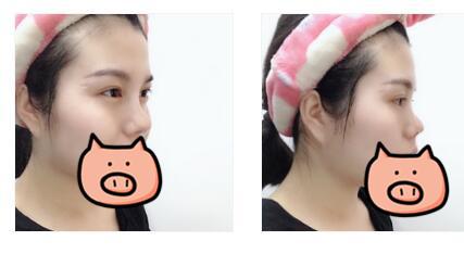 西安高一生整形硅胶隆鼻案例 鼻子恢复的很自然
