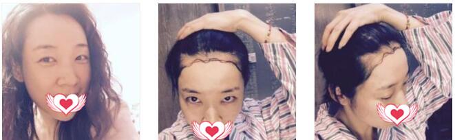 北京雍禾植发整形做发际线种植案例 术后12个月毛发长得真棒