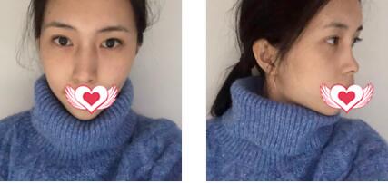 西安高一生整形做隆鼻案例 术后30天脸型变漂亮了
