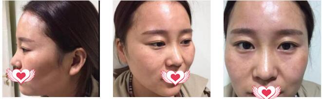 西安华旗唯美整形做玻尿酸丰太阳穴案例 术后30天拍照上镜了哟