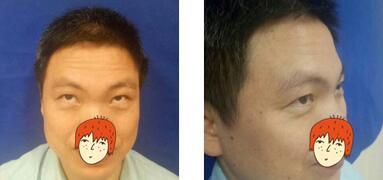 福州东南眼科整形肉毒素去抬头纹案例 皱纹变少且自然