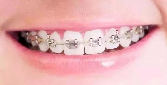 牙齿矫正会不会松动?