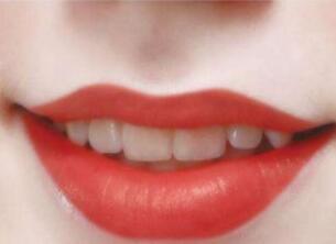 纹唇后什么时候可以刷牙