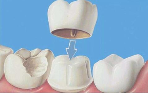 做烤瓷牙后出现牙炎怎么办