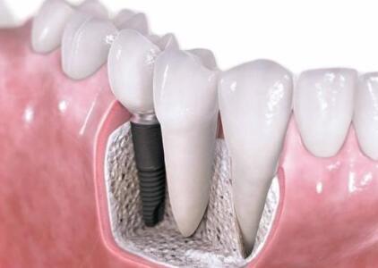 抽烟对种植牙有影响吗