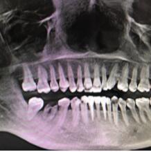 成都博爱医院种植牙案例 分享我的蜕变心得了