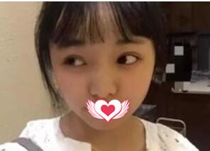 海南华美整形做耳软骨垫鼻尖案例 术后分享对比照图片