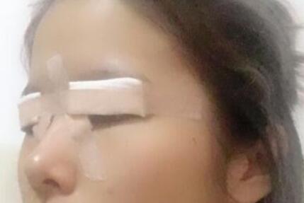广州胡志奇医生双眼皮案例 术后效果很成功哦