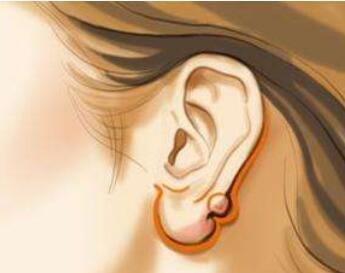 今日热搜:副耳整形无副作用