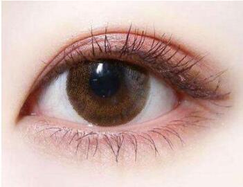 今日看点:割双眼皮失败原因