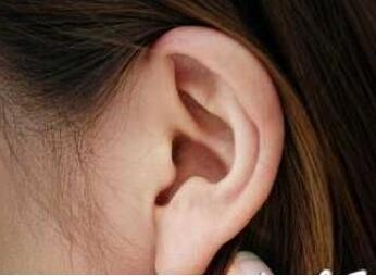 三月关注:副耳切除7-8岁期间安全