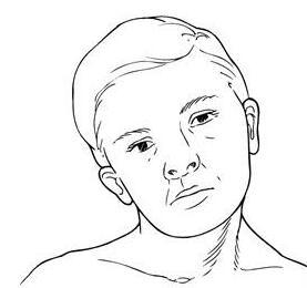 肉毒素除了能瘦脸腿肩