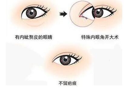 开眼角手术是有一定的风险大吗