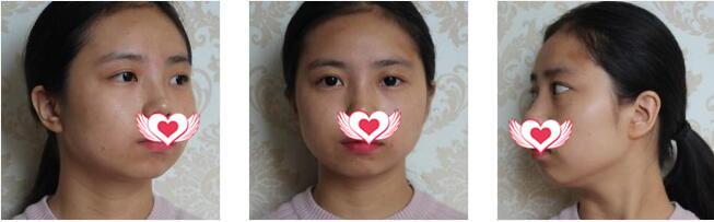 四川軍大整形做面部吸脂案例 分享我臉型變美的心得體會