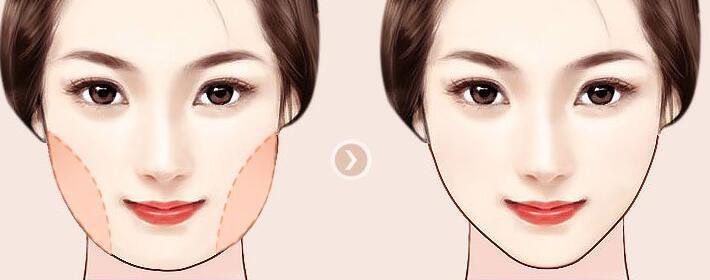 面部吸脂恢复时间跟个人体质有关吗
