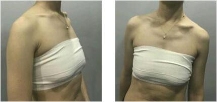 重慶鉑生整形杜亞旭做自體脂肪隆胸案例 術后12天深深乳溝出現了