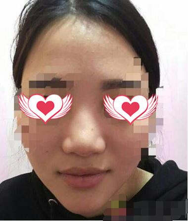 西安西美整形做鼻部綜合術案例 術后鼻型很是令我喜歡