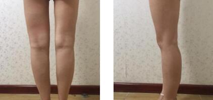 長春珍妮整形做肉毒素瘦小腿案例 術后十多天身材變好了
