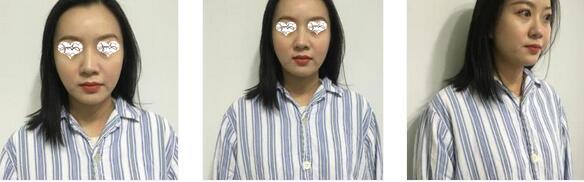 南京美貝爾整形黃名斗醫生肋軟骨隆鼻案例 鼻子形狀那么精致