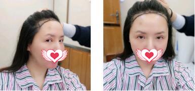 上海雍禾植發醫院發際線種植案例 術后8個月頭發已經5cm左右了