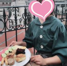 北京美莱整形宋延刚医生自体脂肪丰胸案例 已经5个月了变得很自信