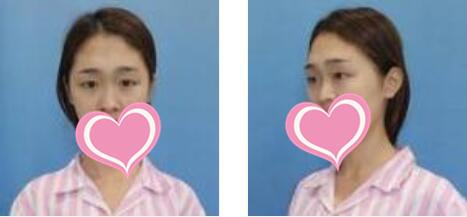 南京美贝尔整形鼻翼缩小案例 术后四个月前后差距很真的很大