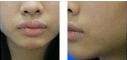 厦门银河整形柴天举做M唇手术案例 术后30天性感美唇出炉了