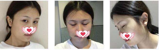 杭州华山连天美整形高俊明做下颌角整形案例 术后随意拍照都美