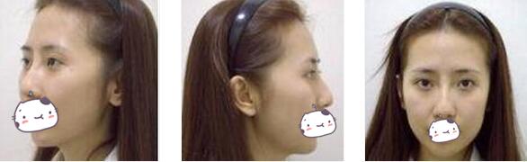 北京长虹整形鼻综合案例 感觉做鼻子后的脸都是完美的