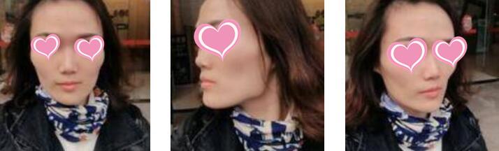 上海美聯臣整形陳紅梅醫生自體脂肪豐面頰案例 分享變美的心情了