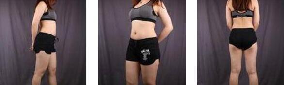 上海华美整形何斌医生大腿吸脂案例 论胖子到瘦子的变化