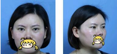 南昌同濟整形高超醫生鼻綜合案例 個人覺得鼻子做的很自然