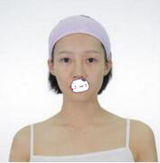 东莞南城知美整形黄双闻医生鼻综合案例 实现高鼻梁和俏鼻的愿望