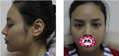 成都西区医院毛健清医生自体脂肪面部填充案例 脸部线条都柔和了