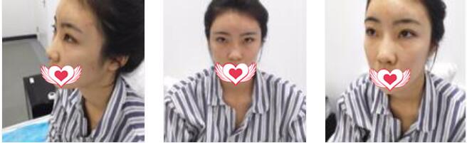 北京炫美整形做肋软骨隆鼻案例 术后分享我变美的心得体会