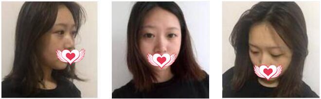上海薇琳整形做雙眼皮案例 術后30天美眼呈現出來了