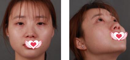 西安高一生整形做隆鼻案例 術后60天哪個角度拍照都hold得住