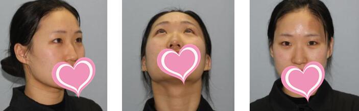宁波薇琳整形隆鼻案例 术后一个多月了鼻子恢复蛮好的