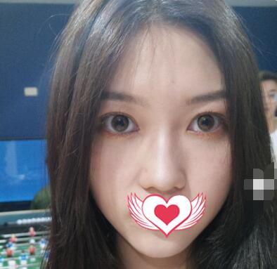 广州美莱整形做双眼皮全切+去皮案例 术后没有一点防备变美了