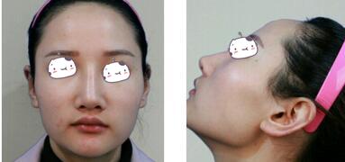上海華美整形李志海醫生左顴骨內推+下頜角切除案例 效果很明顯
