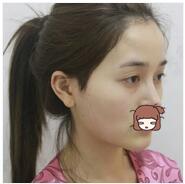 深圳艺星整形自体脂肪全脸填充案例 手术效果看起来很自然了呀
