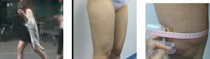 成都艾米麗整形潘紅偉醫生吸脂瘦大腿案例 有了修長的美腿開心